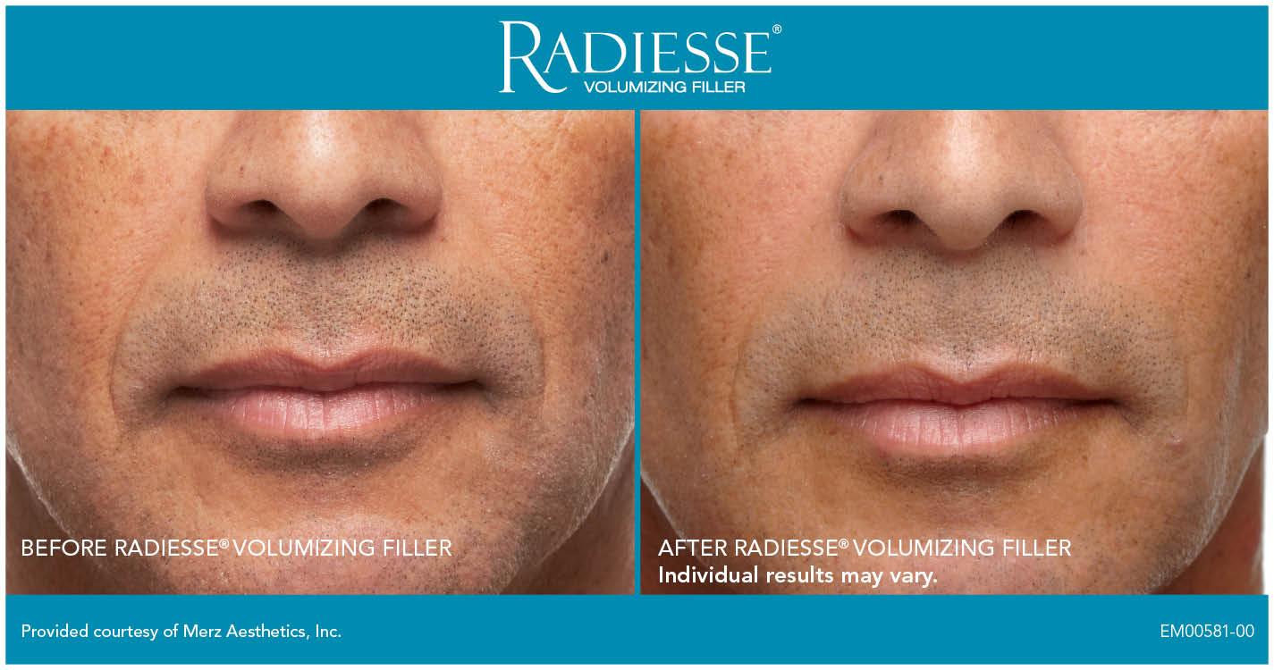 Radiesse™